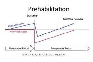 prehabilitation